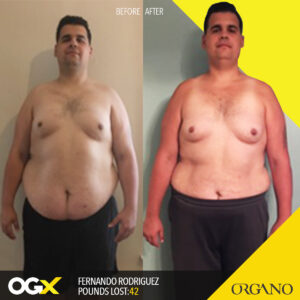 before_after_FernandoRodriguez